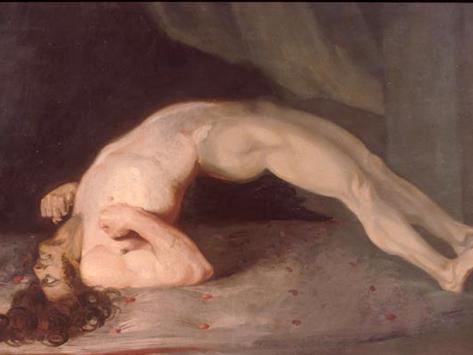 Opisthotonos (kejang karena tetanus). Sir Charles Bell, 1809.